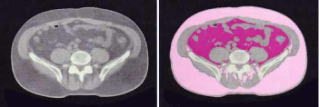 Visceral fat (dark pink) is separated from subcutaneous fat (light pink)