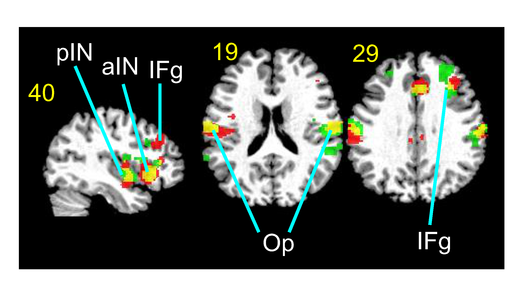 Functional magnetic resonance images of the brain responding to different ultrasound parameters